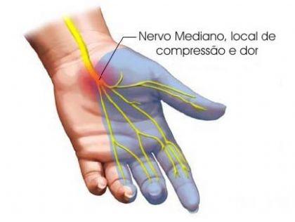 Nervo mediano